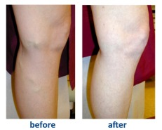 Before and After Photo - Laser Vein Treatment